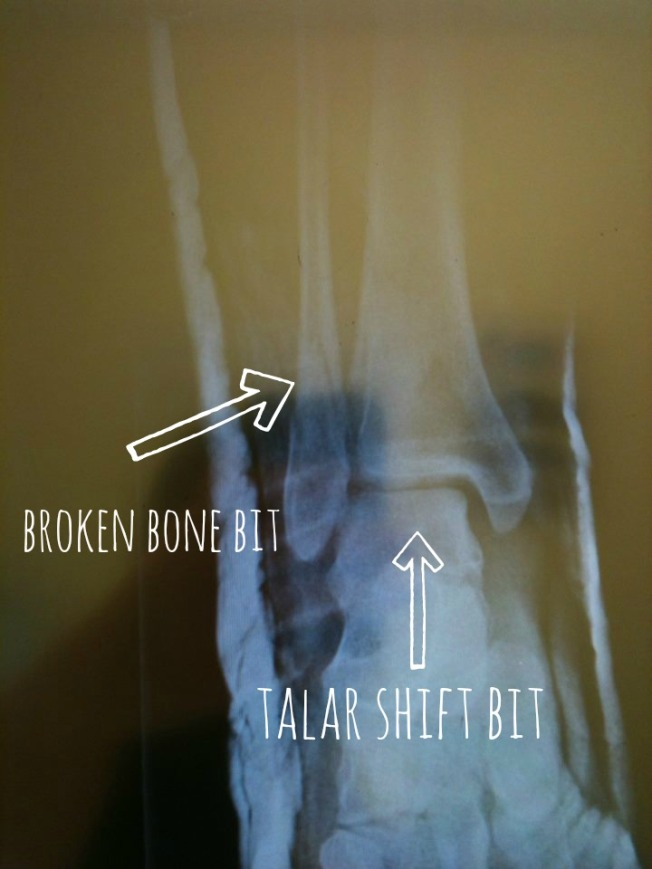 broken ankle roller derby